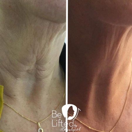 be-lifted-plasma-resultaten-10